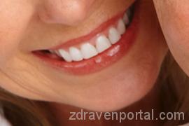 Oralna-higiena-i-profilaktika-270x180
